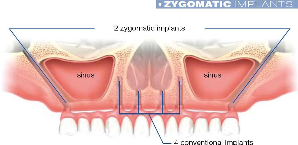 Advanced Implant Surgery (Zygoma) - North Bethesda Periodontal Group ...
